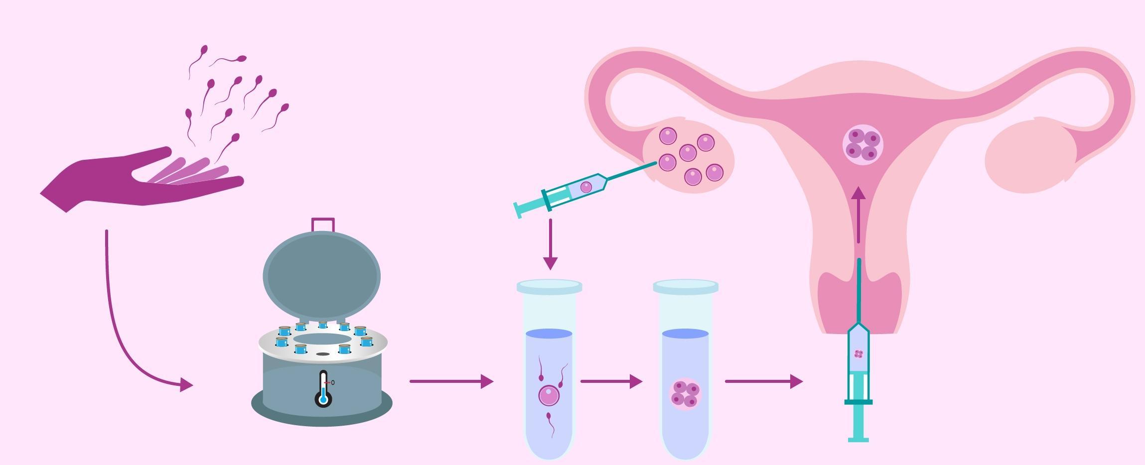 Сперма донорство